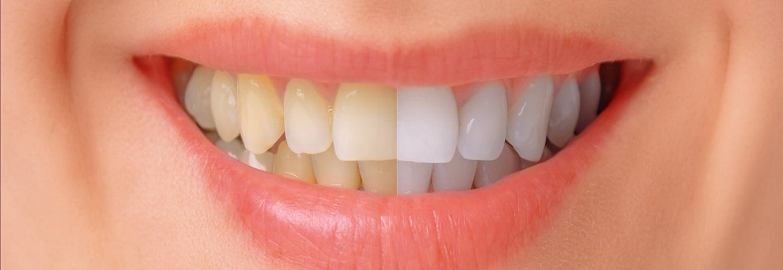 slider-teeth-whitening
